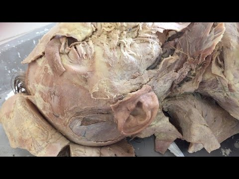 Anatomy of the Cadaver  Head and Neck