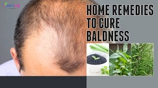 How to treat baldness or regrow hair on bald spot | HOME REMEDY