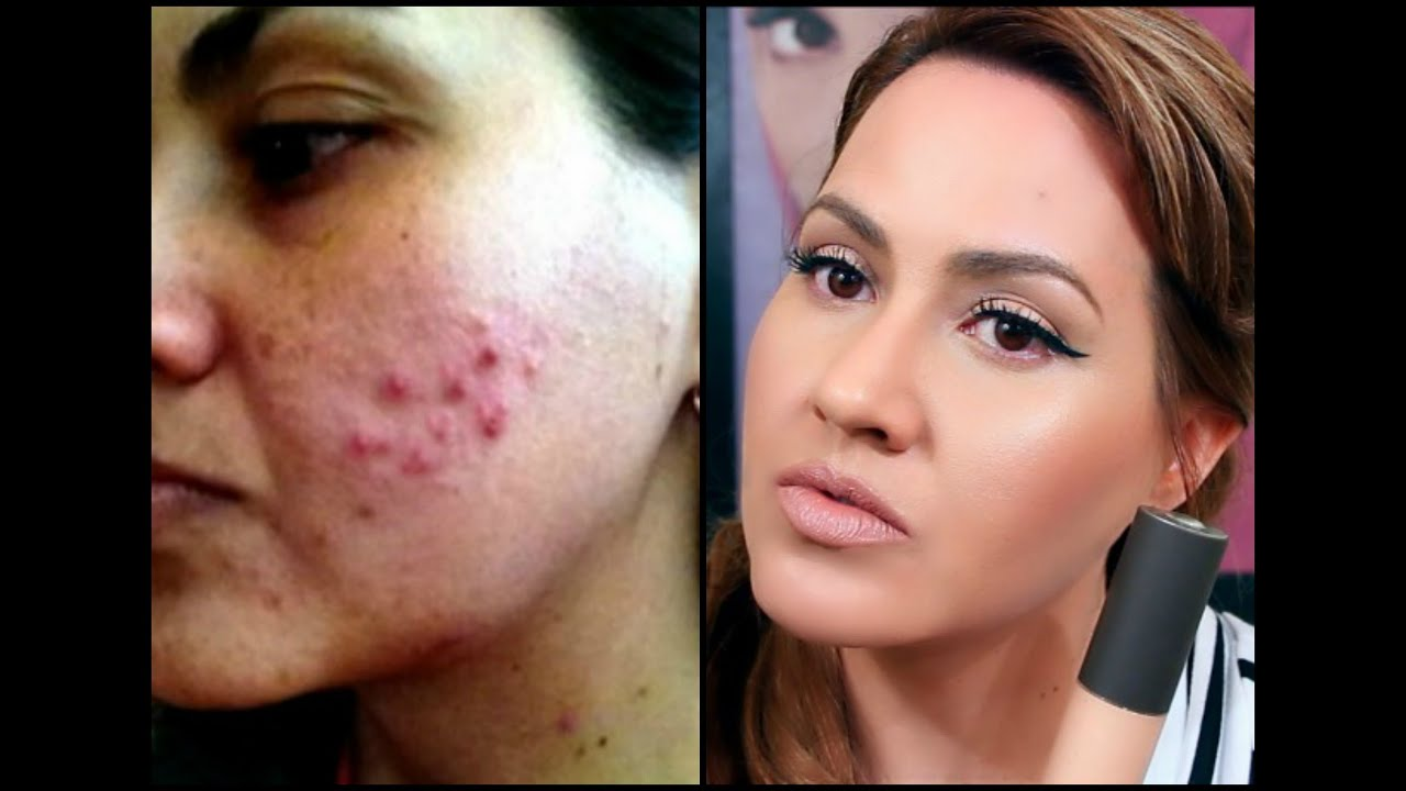 How to get rid of acne scarring and dark spots youtube ccuart Image collections