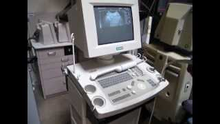 Refurbished Ultrasound Machines for Sale Siemens Sonoline Prima