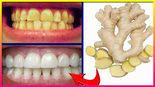Magical Teeth Whitening Remedy, Get whiten Teeth at home in 5 minutes