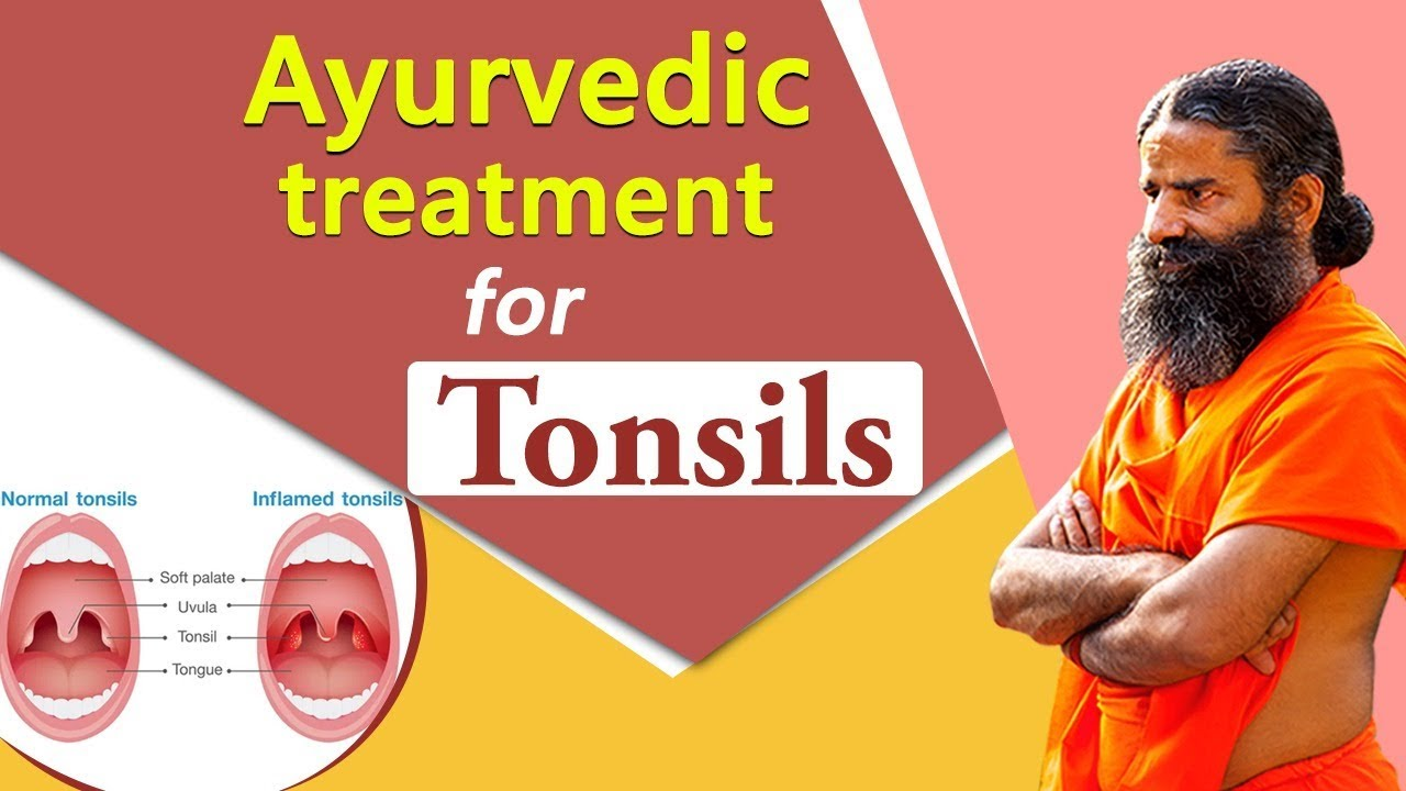 Tonsil yoga stones for 8 Effective