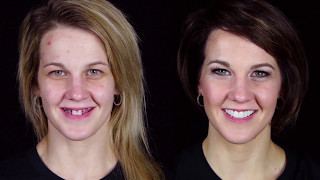 Amazing Makeover!  LIFE CHANGING RESULTS! Must See Story!