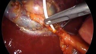 Vésicule HD - Gallbladder HD