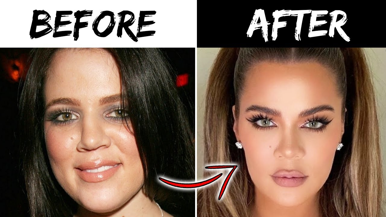 Top 10 Influencers Who Claim They Haven't Had Plastic Surgery | Marathon