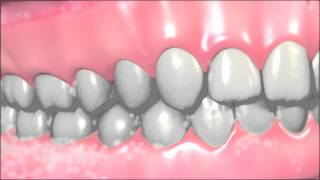 How To Take Care of Dentures?