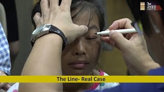 The Line Plastic Surgery Real Case | Success Story of Ban Thi Thuy