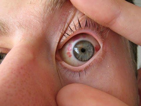 Лазерная коррекция зрения тамбов цены