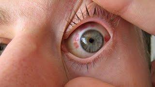 После операции лазерной коррекции зрения (ЛАСИК)