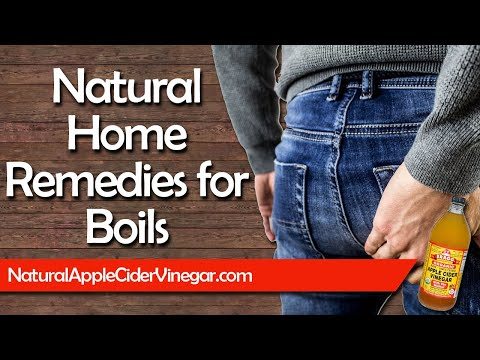 All Natural Home Remedies to Cure Boils