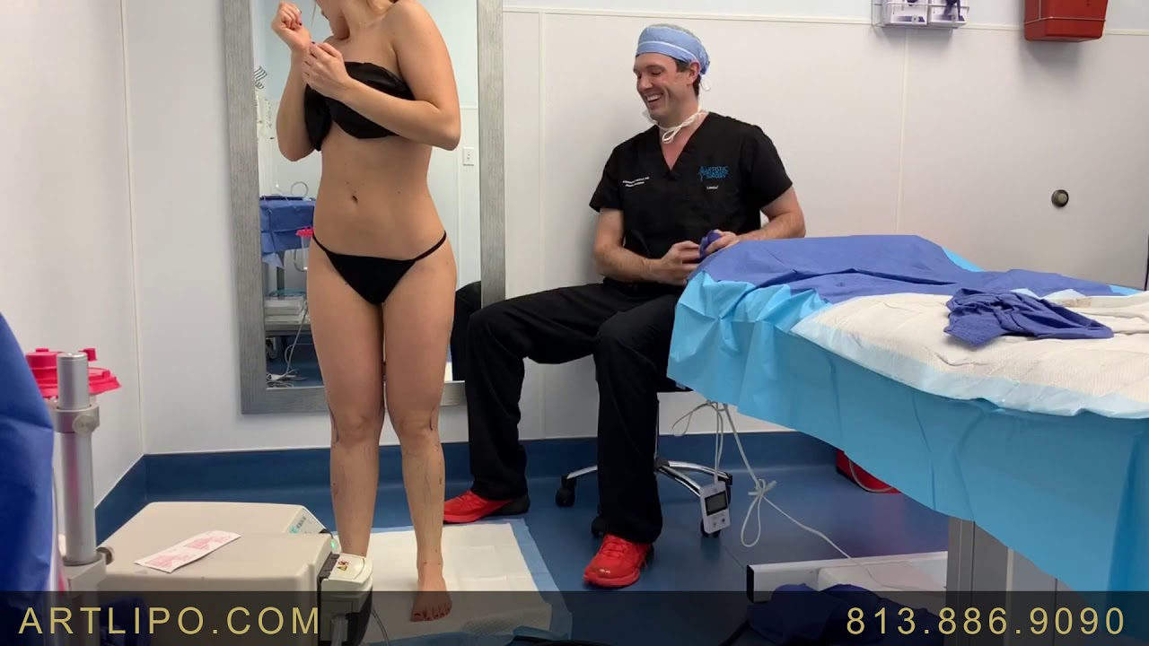 Lipedema Liposuction Treatment | Art Lipo