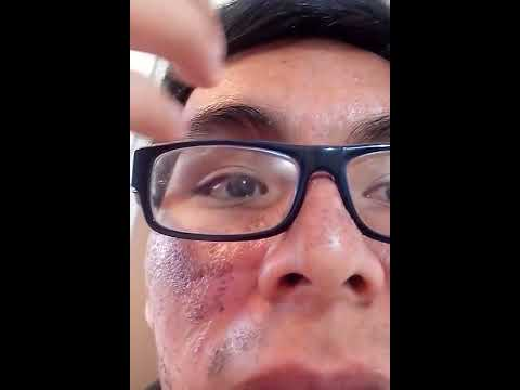 Laser Fraccionado CO2 acne