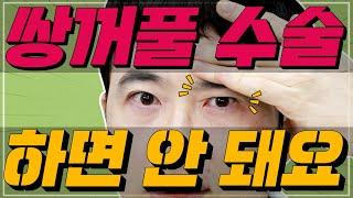 쌍수하면 안되는 눈? 그게 바로 너!! 닥터 김종규