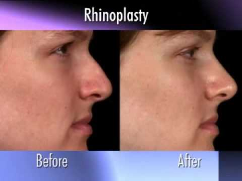 Dr. Nachbar on Rhinoplasty