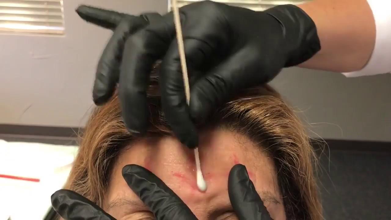 10-20 EEG hook up Wanneer te beginnen met daten na de echtgenoot sterft
