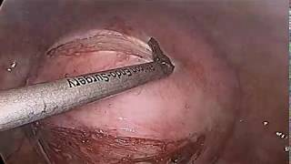Laparoscopic Myomectomy for Large Intramural Myoma