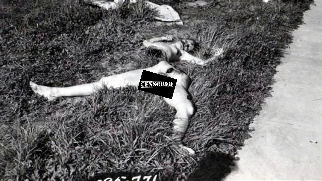 Black Dahlia Genital Defect