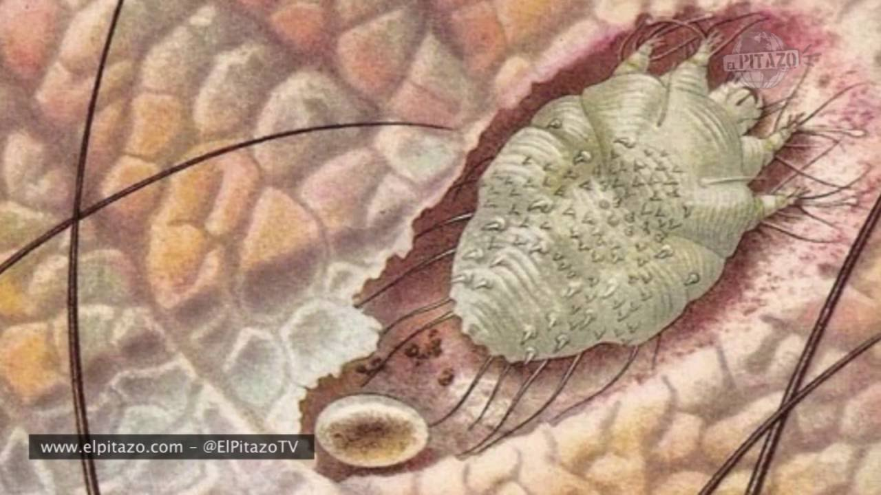 acaros de la sarna humana