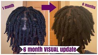 6 Month VISUAL Loc Update On 4C Starter Locs | Naomi Onlae