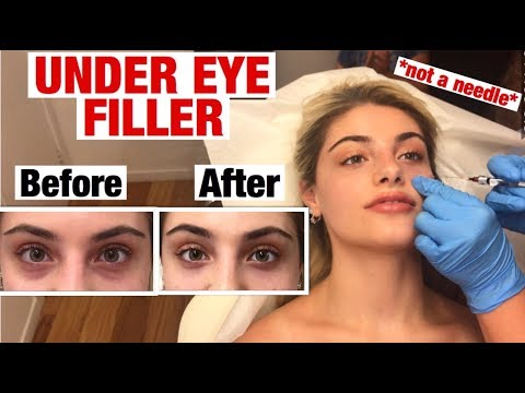UNDER EYE FILLER INJECTION For Dark Circles And Bags!! Before & After