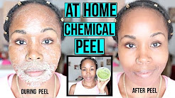 hqdefault - Homemade Skin Peels Acne Scars
