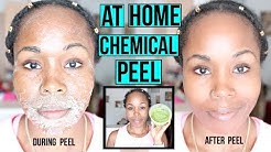 hqdefault - At Home Facial Peels Acne Scars