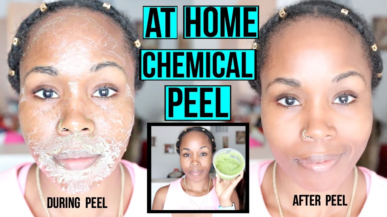 Facial peal at home