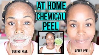 HOW TO Make a NATURAL Chemical Peel AT HOME | ERASE ACNE, WRINKLES & DARK SPOTS