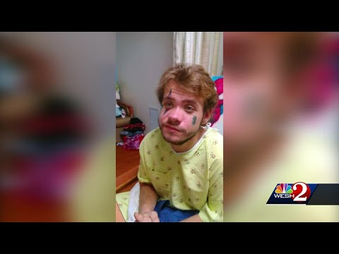 Search On For Person Who Attacked Man, Leaving Him Disabled, Outside Daytona Beach Bar