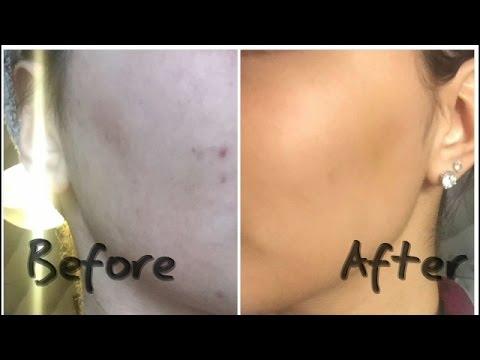Comment lutter contre l'acné et les tâches brunes ? l'huile de nigelle