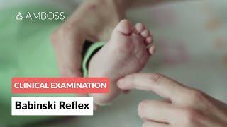 Babinski Reflex in Infants - Clinical Examination