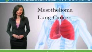 Asbestos Cancer and Mesothelioma San Diego Attorneys