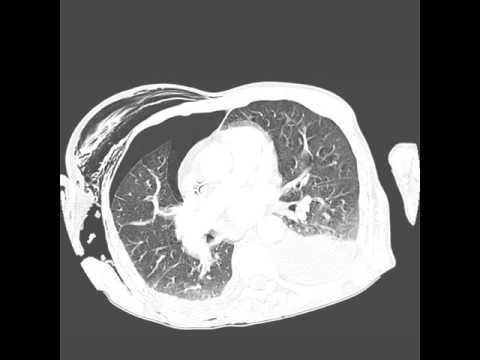 Эмфизема: виды, симптомы, профилактика и лечение заболевания