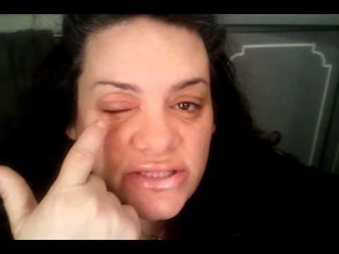 Resin Allergic Reaction..be aware!!!