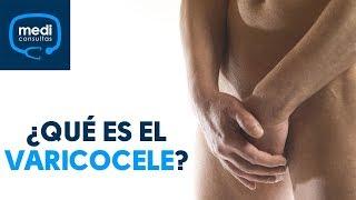 En ¿Qué causa testículos? venas los varicosas las