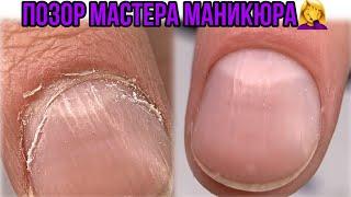 ПТЕРИГИЙ на пол ногтя Позор мастера маникюра Маникюр первый раз