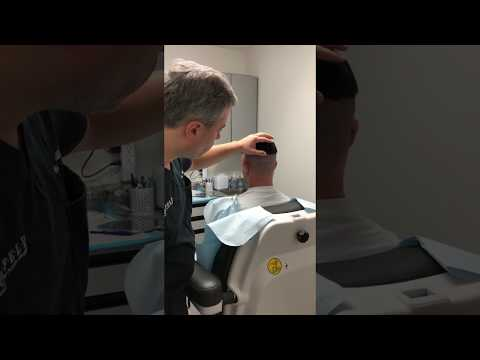 ARTAS iX Robotic FUE Procedure with Dr. Wolfeld Part 3