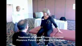 Florence's Frozen Shoulder Released with MPS Scar Release Therapy