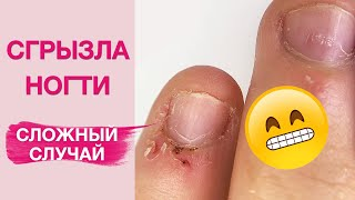 Заусенцы Как НЕ грызть ногти Наращивание БЕЗ форм