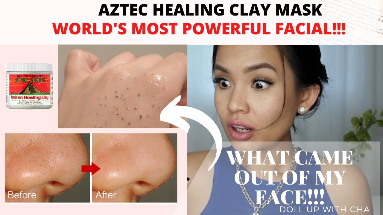 How I Remove My Stubborn Blackheads World S Most Powerful Facial Aztec Indian Healing Clay Mask Youtube