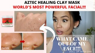 How I remove my stubborn Blackheads| WORLD'S MOST POWERFUL FACIAL| Aztec Indian Healing Clay Mask