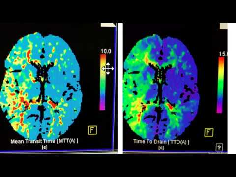 Video 1 of 3:  How to interpret a Brain CT Perfusion Scan for acute stroke
