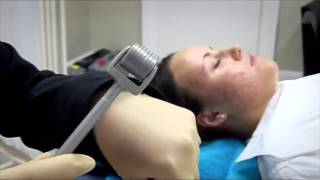 Acne Treatment - Embarrassing Bodies