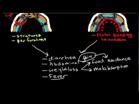Inflammatory Bowel Diseases: Crohns & Ulcerative Colitis