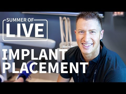 Guided Dental Implant Placement - LIVE Treatment