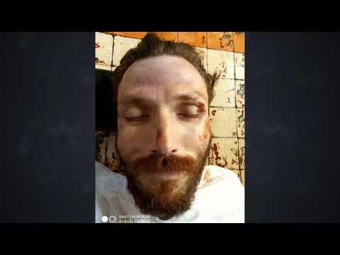 На Київщині знайшли закривавлений труп чоловіка
