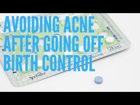 treating-acne-after-going-off-birth-control