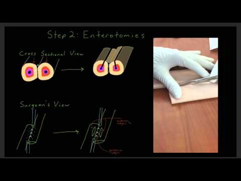 Technical Aspects of the Hand Sewn Two Layer Bowel Anastomosis for Learners on a Surgery Rotation
