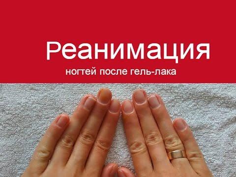 После снятия гель лака болят ногти
