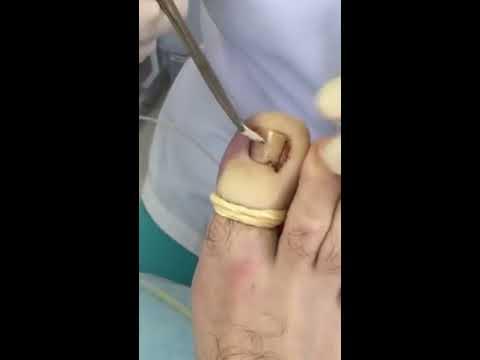 Удаление лазером ногтя на ноге